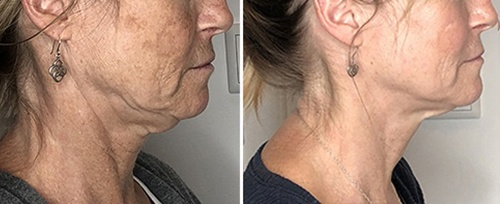 4D Treatment Before and After
