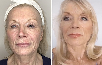 4D Laser Face Lift Before and After