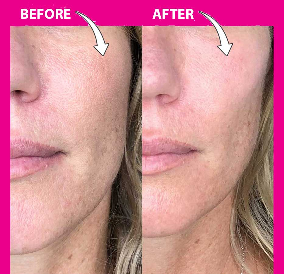 Cheek Filler Before and After Photo