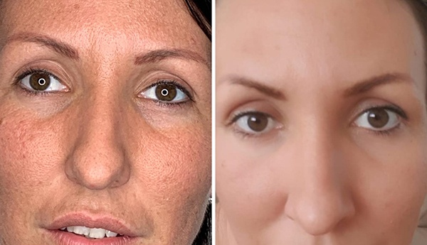 Smooth Eye Treatment Before and After