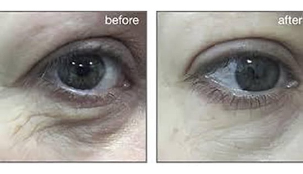 Smooth Eye Treatment Before and After Photo