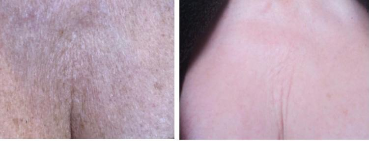 Decollete Pigmentation Treatment