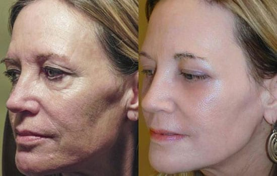 Full 4D Laser Face Lift