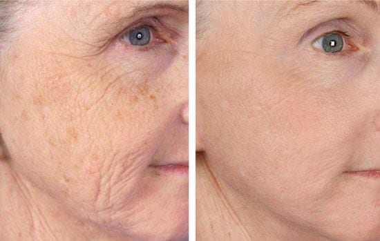 Pigmented Skin & Skin Tightening
