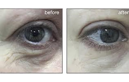 Smooth Eye Before After
