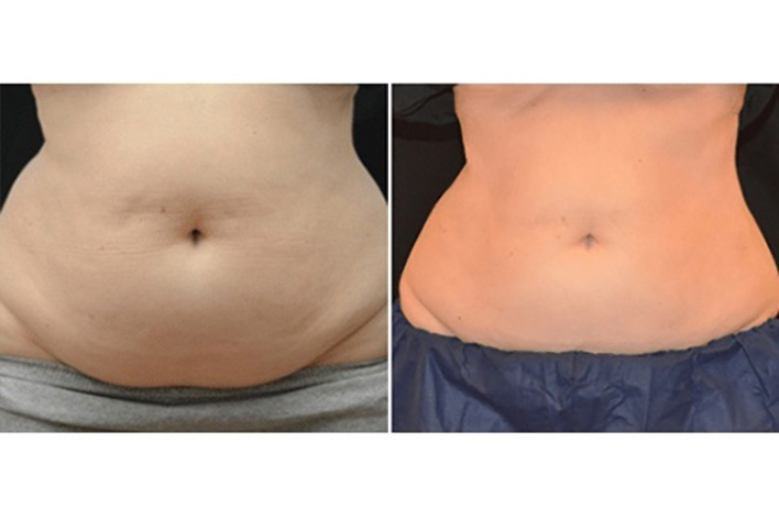 Cryoliposculpt Before and After