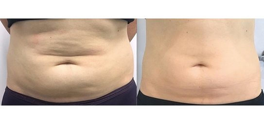 Cryoliposculpt-Before-After