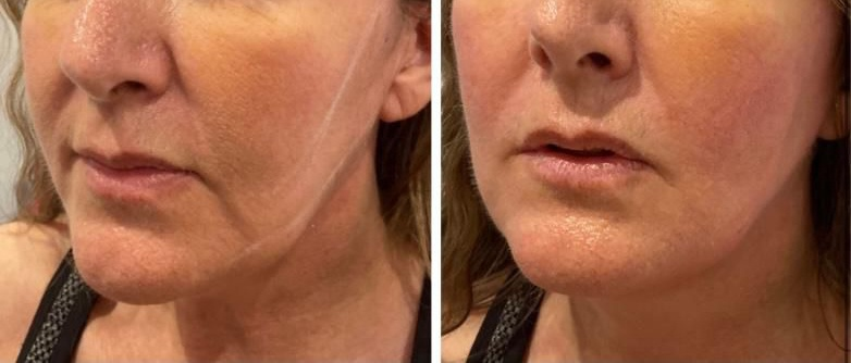 PDO Threadlift Before After