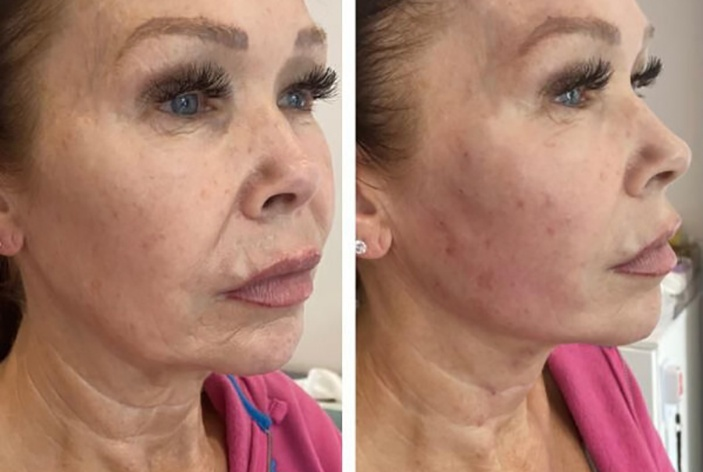 PDO Threadlift Before After Featured